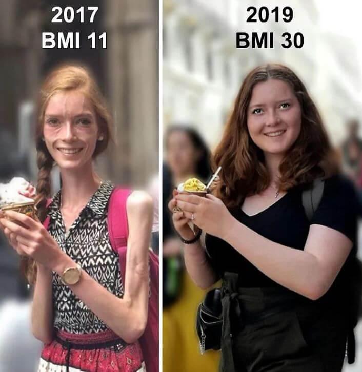 Jovem que superou anorexia escreve mensagem a adolescentes que a humilharam por causa do peso