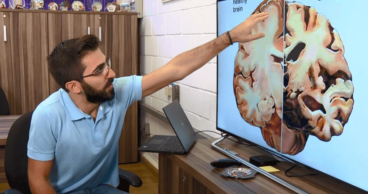 Resultado de imagem para Universitários da Unicamp desenvolvem método inédito para diagnosticar Alzheimer