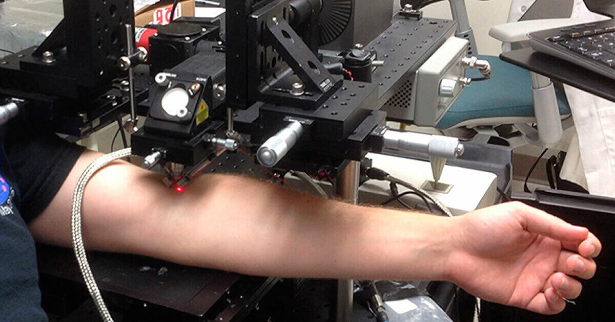 Laser destrói células cancerosas que circulam no sangue